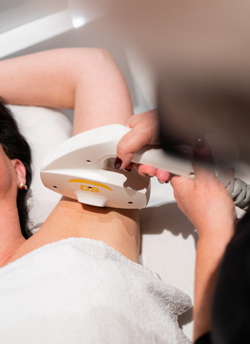 intense-pulsed-light-hair-removal-ipl-treatment